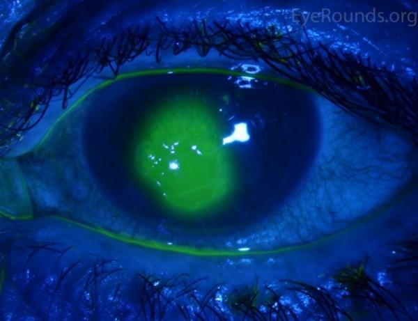corneal-abrasion-fluor-LRG
