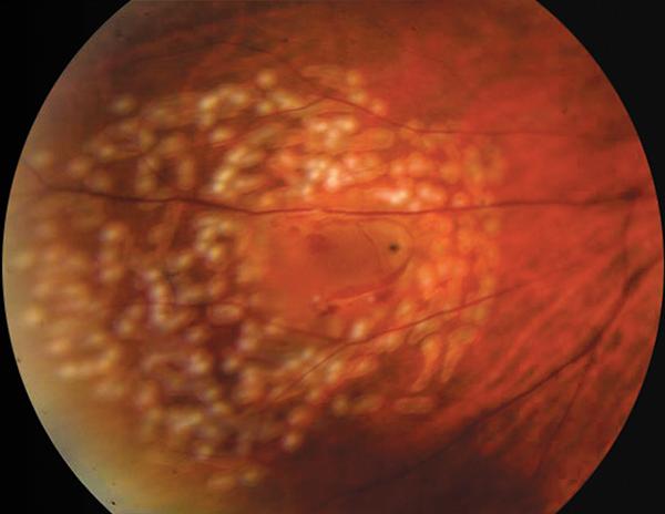 retinal-tear-following-laser